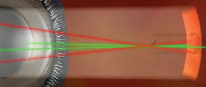 A new use for the YAG laser: vaporizing floaters